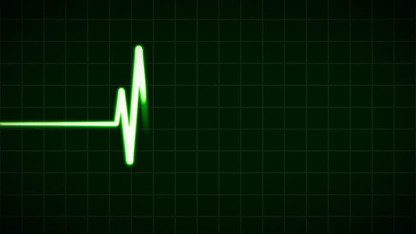 Header of cardiovascular
