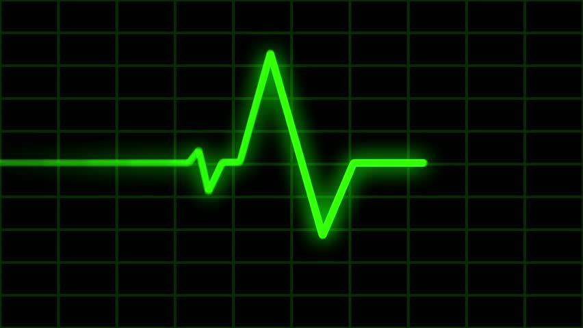 ekg heartbeat monitor visual effect cgi loop stock footage video 6463958 shutterstock. Black Bedroom Furniture Sets. Home Design Ideas
