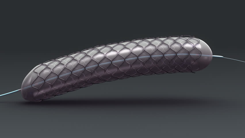 stent definitionmeaning
