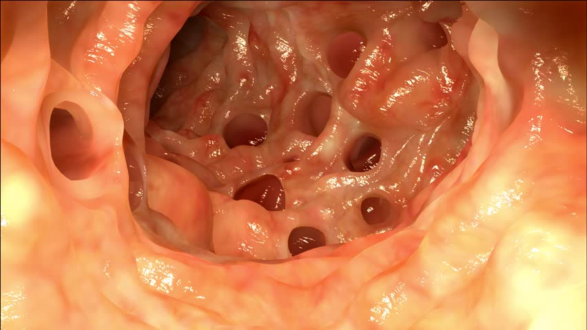 Colon with Diverticulosis