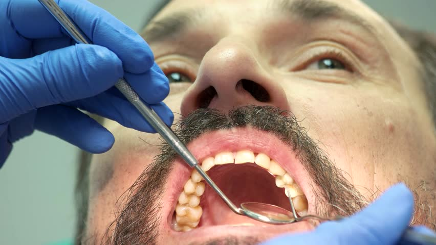 Work of dentist, close up. Doctor using mouth mirror. | Shutterstock HD Video #28443835