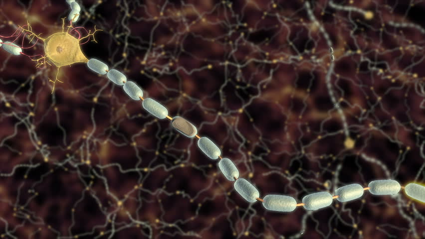 3D animation shows damage to oligodendrocyte or Schwann cell created myelin sheath along axon of neuron leading to disrupted propagation of action potential and slowed signal conduction through CNS  - HD stock footage clip