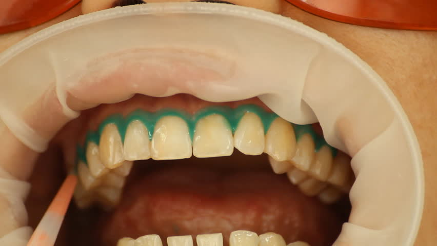 Teeth Whitening. Application of whitening gel to the teeth. stomatology   - HD stock footage clip