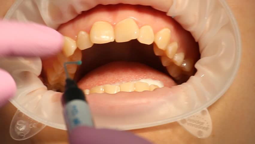 Teeth Whitening Dentistry Stock Footage Video 4004266