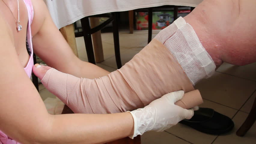 Wound - venous ulcer, stasis ulcers, varicose ulcers, ulcus cruris. 7 Nurse imposes elastic (compression) bandage on the leg. http://en.wikipedia.org/wiki/Venous_ulcer