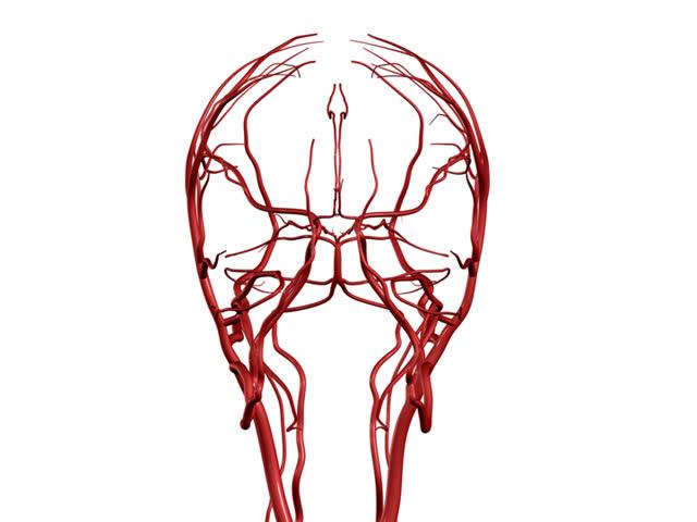 Brain Arteries PAL