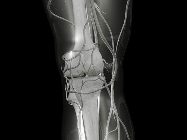 PAL Knee X-ray
